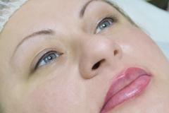 Альбина-губы-10