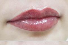 Альбина-губы-12