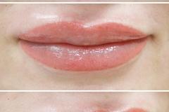 Альбина-губы-21
