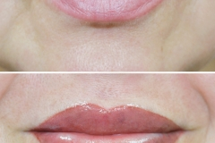 Альбина-губы-22