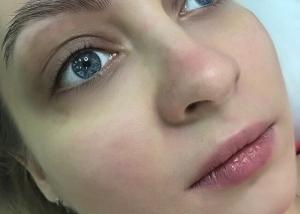 Межресничное пространство век глаз сразу после процедуры. Татуаж век межресничное пространство глаз